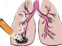 Dez novos casos de cancro do pulmão todos os dias em Portugal