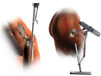 CHUC iniciou técnica cirúrgica inovadora em ortopedia